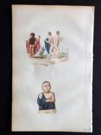 Buffon C1855 Hand Col Medical Print. Conjoined Twins, deformities